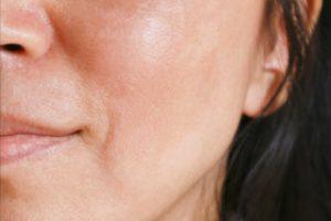 brown spots treatment