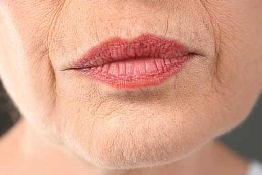 fine lines wrinkle remover