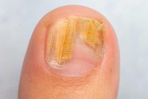 nail fungus laser treatment