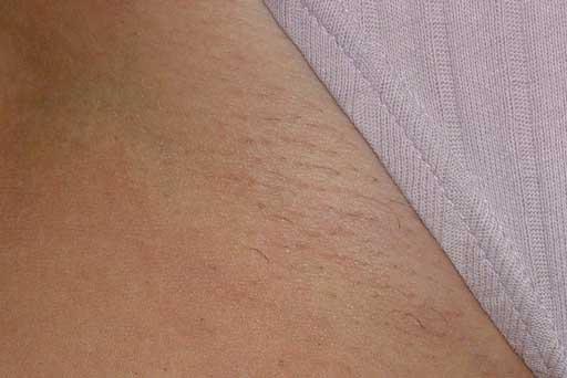 laser hair removal surrey