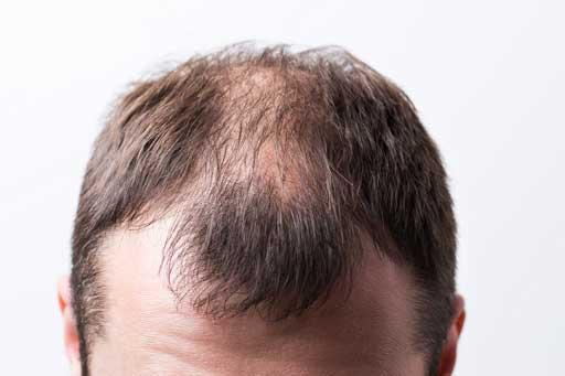 laser hair regrowth