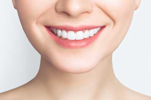 teeth whitening surrey