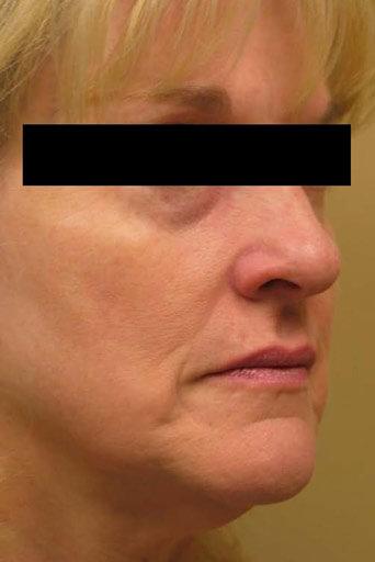 laser wrinkles