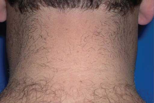 soprano ice laser hair removal