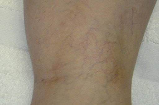 laser spider veins