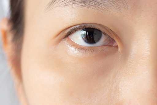 dark circles eye treatment