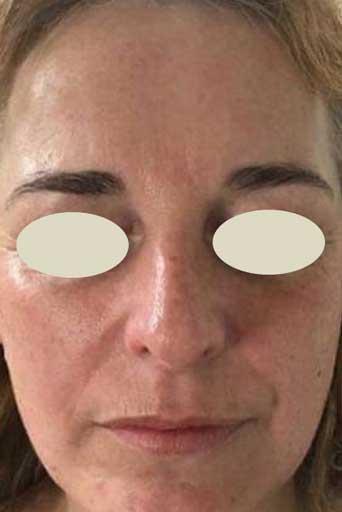 oxygeneo facial surrey